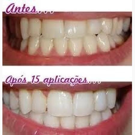 Branqueador Dentes Carvao Em Po Ativado Profissional Natural Teeth
