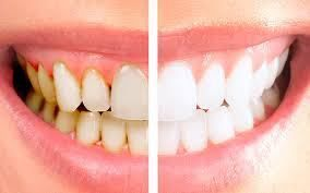 Total White Clareador Dental 100 Natural Desapega